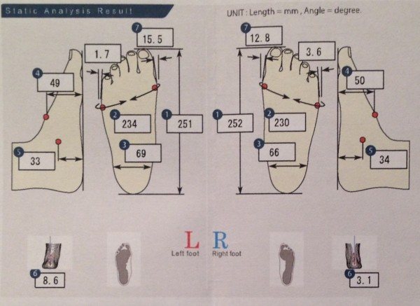 Análisis Foot ID Estático